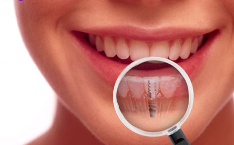 dental implants in Fond du Lac